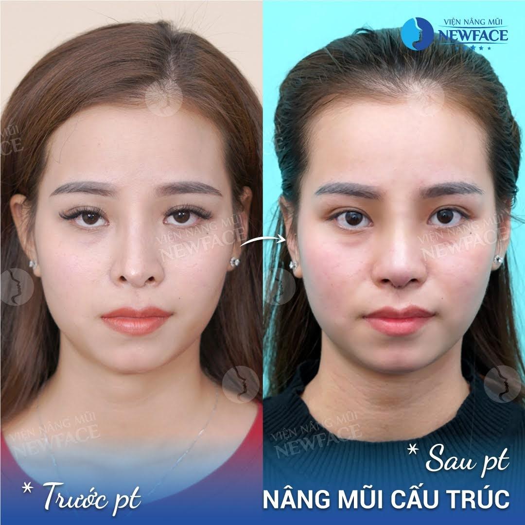 Những trường hợp Newface nâng mũi hỏng và lời khuyên dành cho bạn