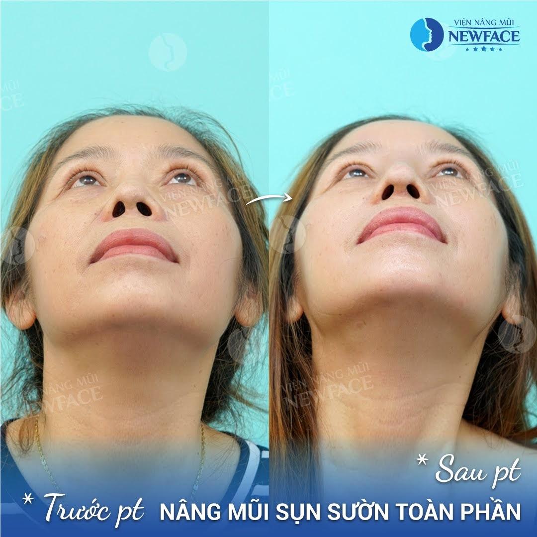 Khách hàng nâng mũi hỏng? Chia sẻ từ Bác sĩ Trần Phương