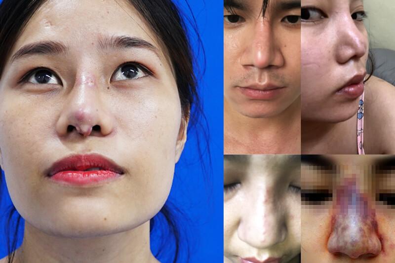 Những dấu hiệu nhận biết thẩm mỹ viện giả mạo Newface lừa đảo