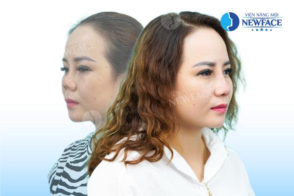 Viện thẩm mỹ Newface và ca phẫu thuật làm mũi hỏng